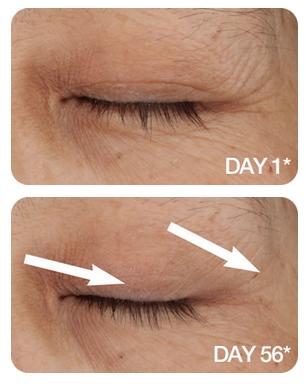 reduce eye wrinkles fast